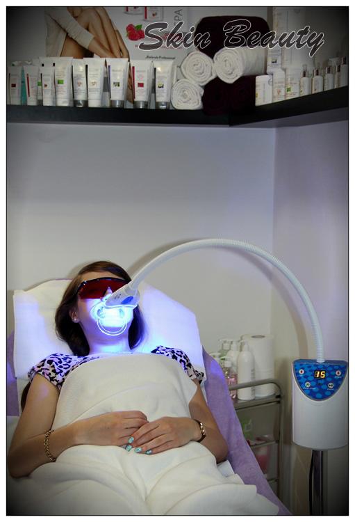 Do-zakładki-wybielania-zębów